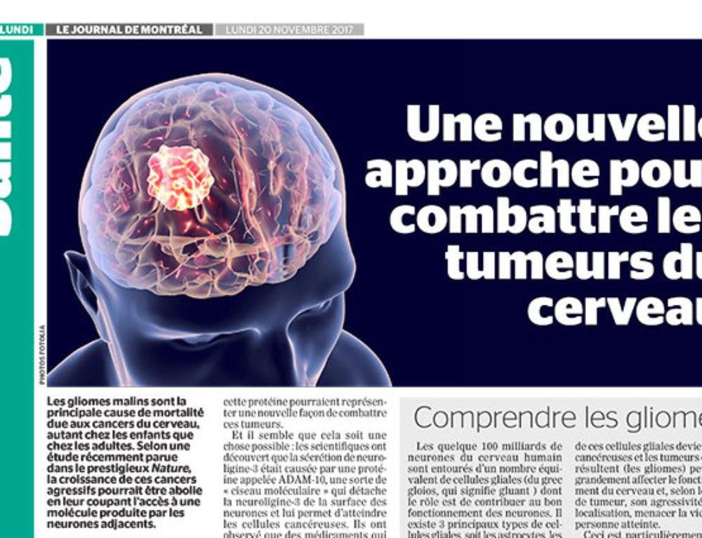 Une nouvelle approche pour combattre les tumeurs du cerveau