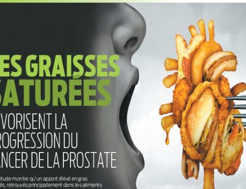 Les graisses saturées favorisent la progression du cancer de la prostate